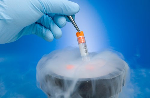 Fertility Treatments Sperm Freezing